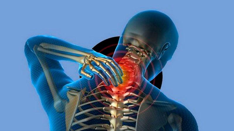 укрепление мышц шеи при остеохондрозе фото